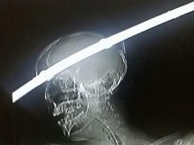 1公尺鐵條「插穿腦門」!車禍男奇蹟存活 醫:沒有半條動脈被刺破