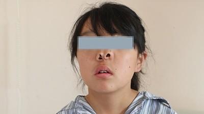 天生「三個鼻孔」無法呼吸!陸女鼻塞16年 術後終吸到第一口氧氣