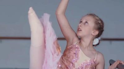「獨腿芭蕾少女」被舞團拒收!慈父心疼拍紀錄片,廠商主動幫做義肢