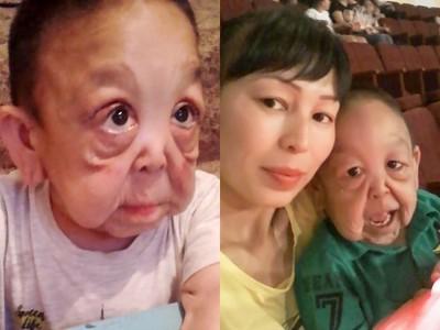 「生給你這張臉是我的錯」罕病6歲童光速老化 母盼整形醫嘆無望