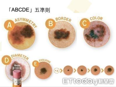 我皮膚上「小痣」會變癌嗎? 醫教你「ABCDE」辨識法
