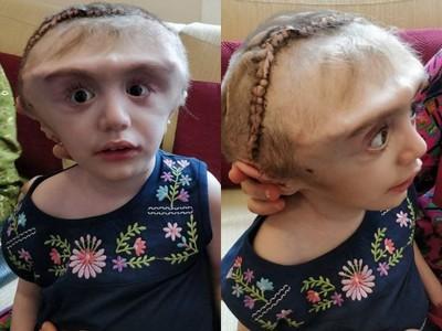 「替外星人生子的女人」妙齡母生下顱骨腫脹罕病兒 遭同村居民嘲笑