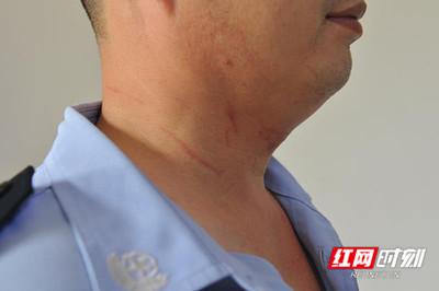 湖南警自願當人質 「從頭到腳」20處刀傷