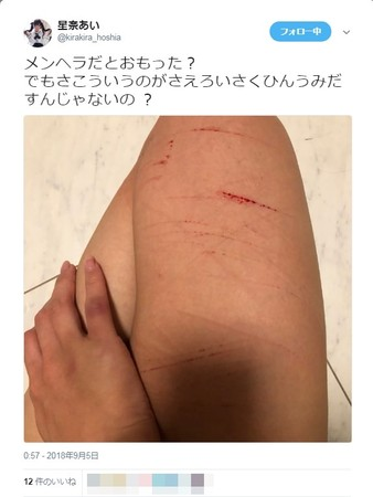 ▲星奈愛被男友劈腿崩潰,在推特上傳自殘照。(圖/翻攝自推特)