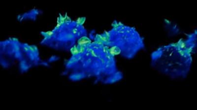 胖丁呷麵|巨噬細胞狂抖「魔幻鐮刀舞」 學者大驚:人類從未見過