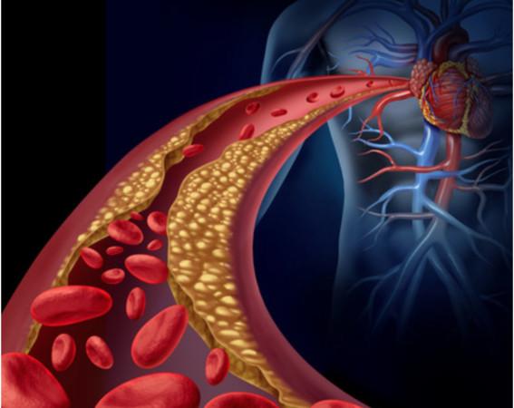 網傳吃「蚓激酶」可以清除血脂、血栓 食藥署急闢謠