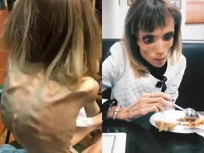 26歲體重17公斤!厭食女上節目張嘴吃飯 媽媽看到哭了:妳很勇敢