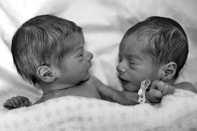 巴西小鎮塞滿雙胞胎! 10倍出生率疑是「納粹毒醫」實驗產物