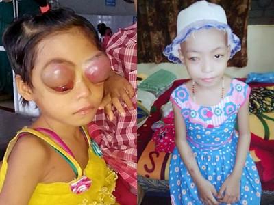 「外星眼」罹癌女童突破10%存活率!數月神速復原 醫生直呼奇蹟