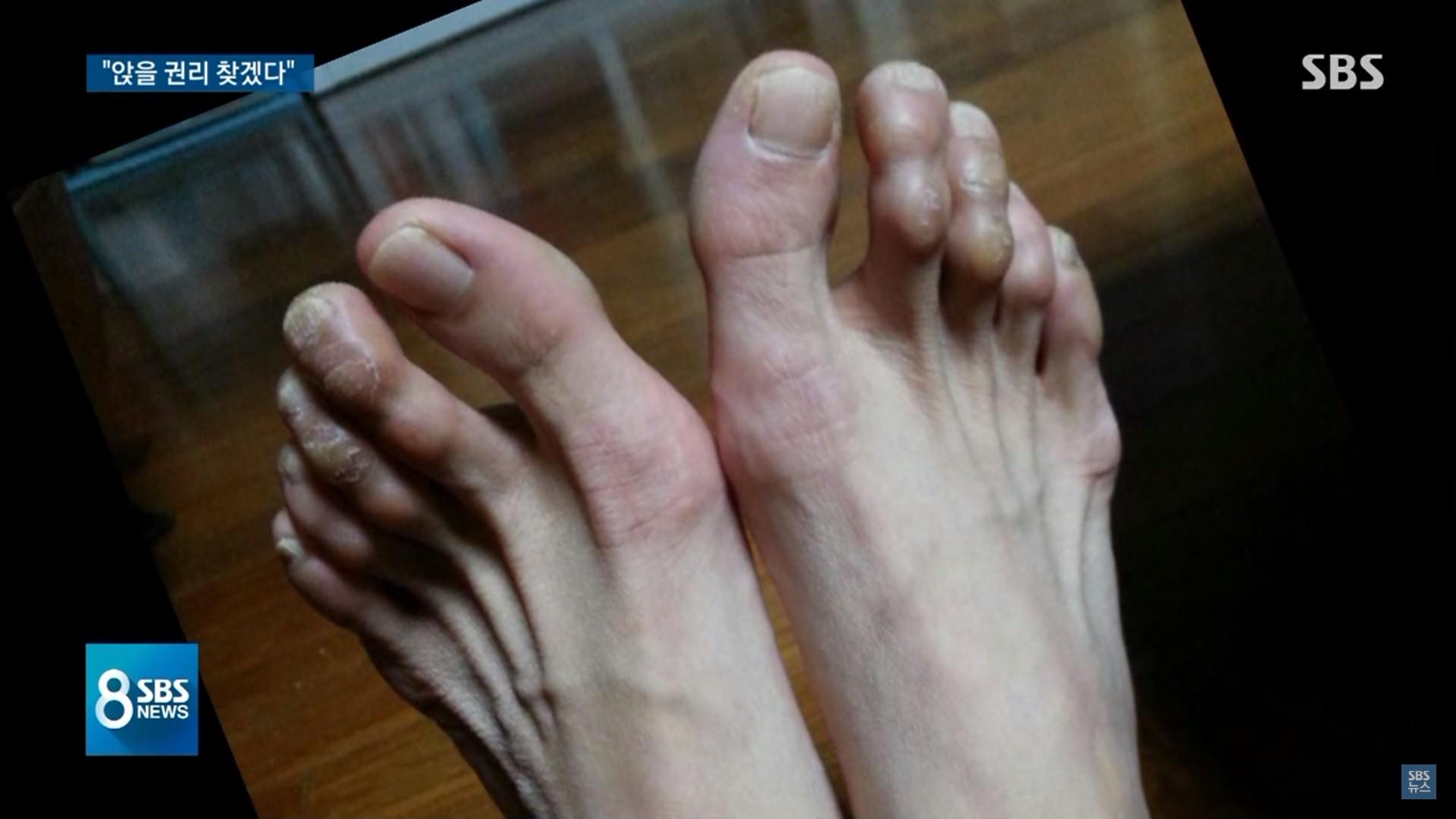 ▲▼ 櫃姐久站到腳受傷。(圖/翻攝自YouTube/SBS 뉴스)
