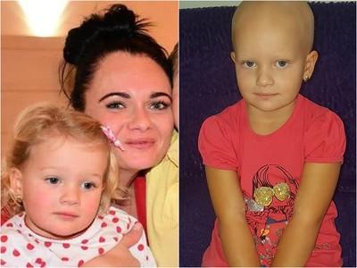 4歲女娃和父母走散 幾分鐘內頭髮全掉光!心靈創傷嚴重引發罕見疾病