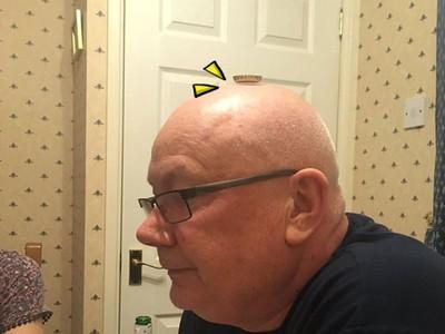 我真有頭髮!「禿頭爸」急證明自我,瓶蓋一放光明頂...嘿真有效