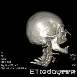 20歲矽膠隆鼻 58年後流膿穿孔