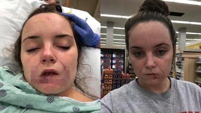 暴力男復合遭拒 咬掉女友整片下唇:我要在妳身上「留下印記」