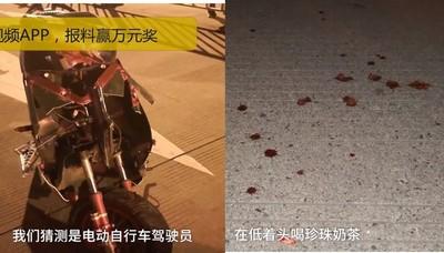 16歲少年騎車喝珍奶 撞掉4顆牙
