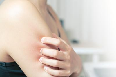 怎樣避免皮膚癢? 醫3點提醒