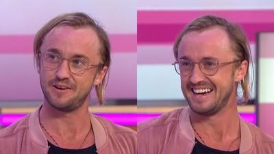 馬份中了「去去頭髮走」 31歲成就帥氣禿頂...採訪主播猛憋笑