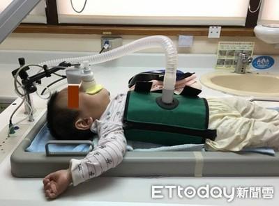 研究:剖腹產寶寶少「2刺激」 氣喘機率是自然產1.6倍