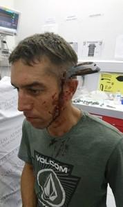上班遇劫!他頭插15cm刀 自行騎車800m求救