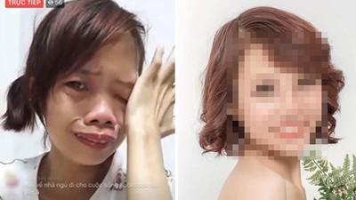 單親媽被譏笑「河童本尊」!三次自殺被兒哭聲喚醒 整形後人生逆轉