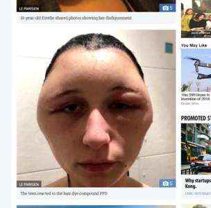 英少女DIY染髮過敏 臉部變形成「電燈泡」