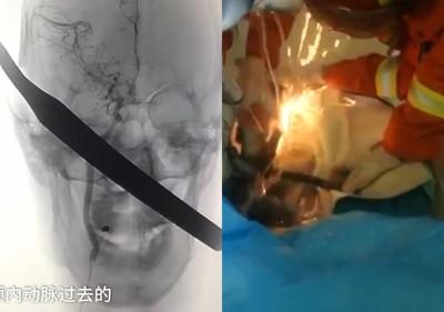 鋼筋貫穿頭顱 消防員切割機搶救
