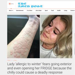 她對「冷」過敏 全身還會狂爆蕁麻疹