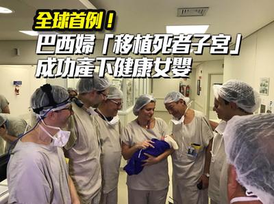 巴西婦移植死者子宮 成功產女嬰