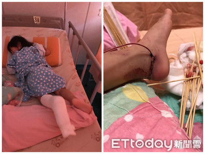 2歲女童「腳踏車輪削過腳踝」肉炸出