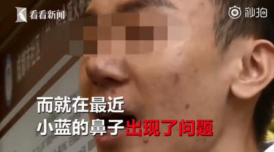 鼻孔流出黃色膿包 假體害鼻尖穿孔