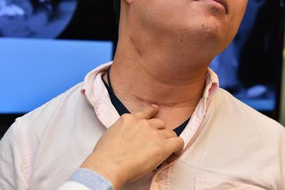 喉嚨卡卡、無法飆高音 壯男驚覺頸部腫塊確診甲狀腺癌