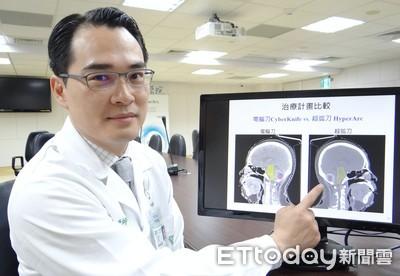 多發性腦部轉移腫瘤 超弧刀治療成功