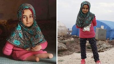 「站著行走」是她的夢想!難民女童靠鐵罐爬行 如今獲贈義肢展笑顏