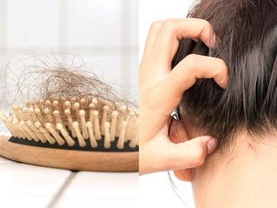 專家教關鍵4步驟解決掉髮問題