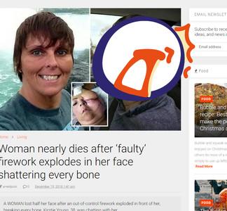 她遭煙火炸傷!左半臉「融化冰淇淋」...還不幸失明