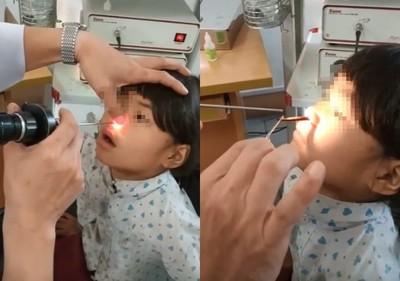 女童鼻痛1個月 竟夾出水蛭蠕動
