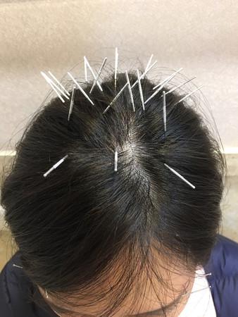 ▲文汶面癱,半邊臉插20針灸 。(圖/民視提供)