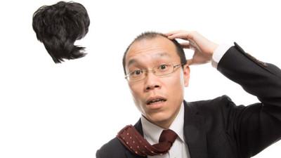 和假髮說掰掰!南韓成功實驗毛囊移植 快去抓身邊頭髮最多的朋友