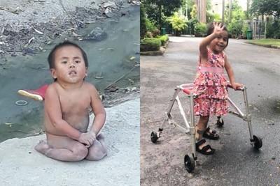 越南半癱女童照爆紅 善款助她重生