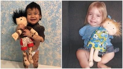 手縫300個「病童娃娃」殘缺神複製 伴孩子面對缺陷、擊敗病魔