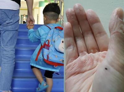 1天幫10孩擦便便!幼教師伸手脫皮乾裂