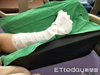 12小時手術 苗栗童左腳掌保住了