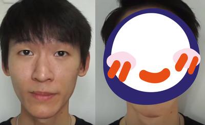 痘疤男靠化妝變美男 前後對比照驚呆
