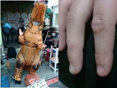 台南男故意割她手2次留疤 奇寶恐龍哭著說謝謝