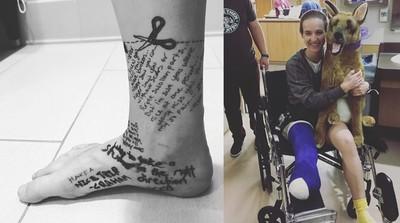 27歲樂觀妹截肢前寫信「送腳一程」