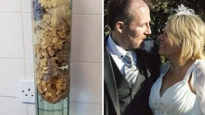 「這段腸子殺死我老公」不捨枕邊人重病去世 深情妻取其內臟製成擺飾