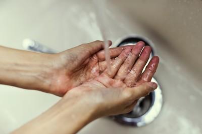 人妻見紅色、圓狀物…15年每天洗手10hrs