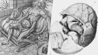 假分娩!懷胎十月卻什麼都沒生下  28年後解剖驚見「石化女嬰」