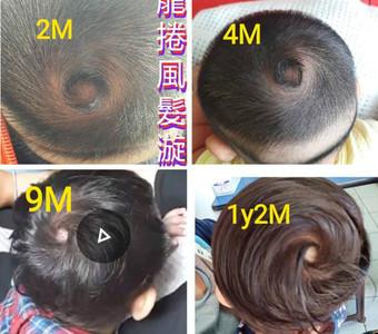 1歲女兒「霸王颱風髮旋」網驚呆
