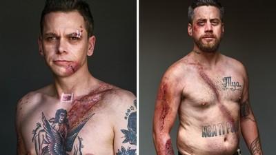 撞擊瞬間「安全帶勒出血痕」 8個命大男子,拍下車禍全身傷警惕世人
